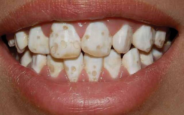 tooth enamel and fluoride How to restore tooth enamel over time brushing your teeth twice a day with a fluoride toothpaste may help restore enamel or prevent further loss of it.