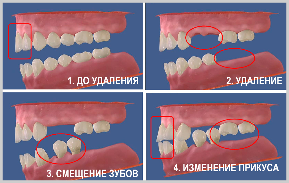 Wisdom tooth  Wikipedia